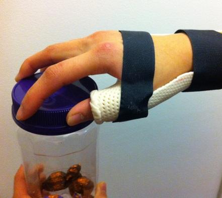 A hand in a brace opening a jar.